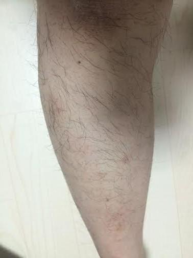 モニター膝下2